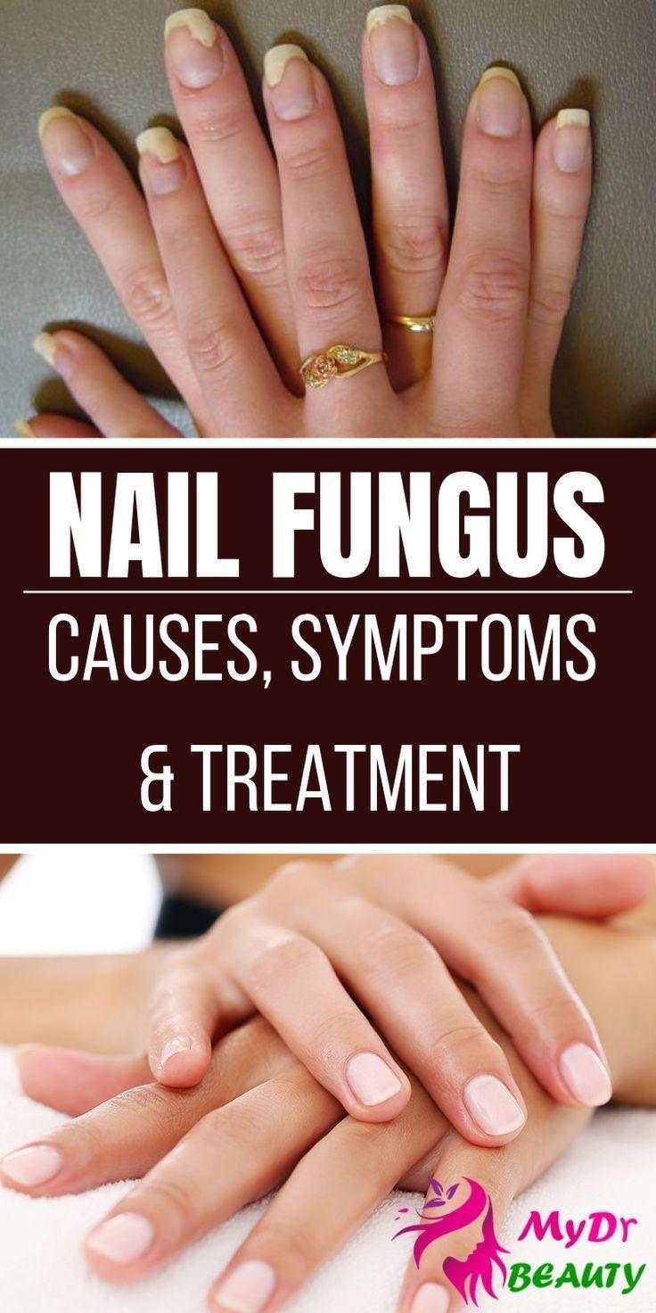 Nagelpilz Ursachen Symptome Und Behandlung Behandlung Nagelpilz Symptom Nagelbehandlung Be Nagelpilz Nagelpilz Hausmittel Nagelpilz Ursachen