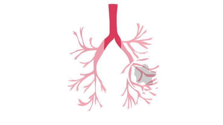 Lung Nodule Natural Treatment