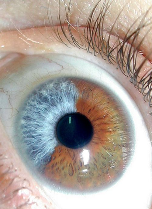 Heterochromia of the iris... or that moment when Loki takes you over with his Glowstick of Destiny.