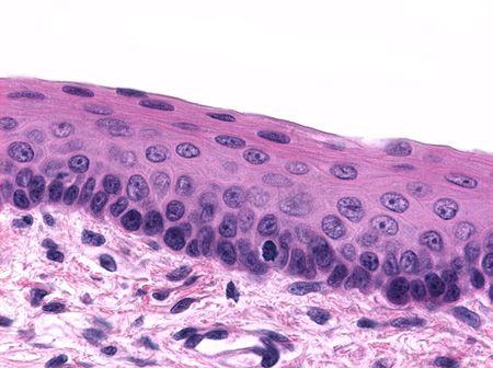 As células do tecido epitelial são todas justapostas, de forma que existe quase nenhum outro material entre elas. Inicialmente, sua função é revestir o corpo e protegê-lo de males externos, porém, as interações intracelulares permitem que ele exerça a função de secretar substâncias por uma série de motivos; isso acontece por causa das interações intracelulares das células do tecido epitelial.