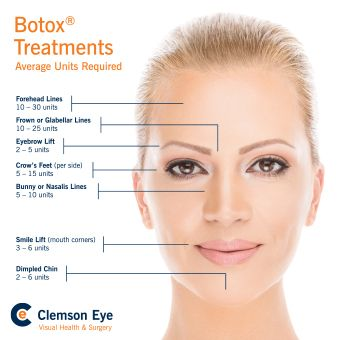 4 post lift diagram botox injection sites diagram - google'da ara | derma ... #9