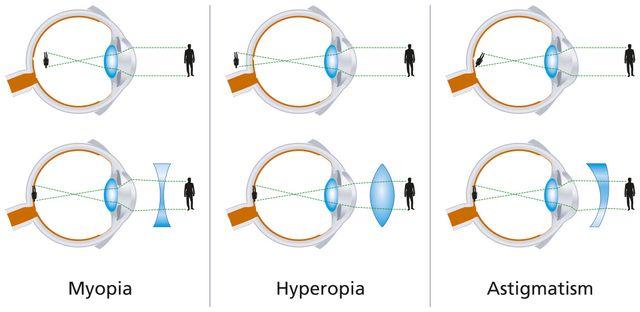 AstigmatismMyopiaHyperopia.jpg (640×312)