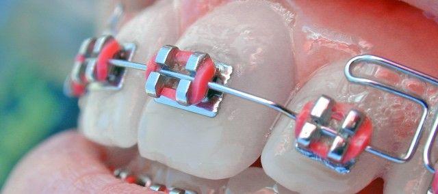 COLAJUL INDIRECT  Aplicarea aparatului fix se numeste colaj, deoarece bracketii se coleaza (se lipesc) pe dinti cu o pelicula de material adeziv.