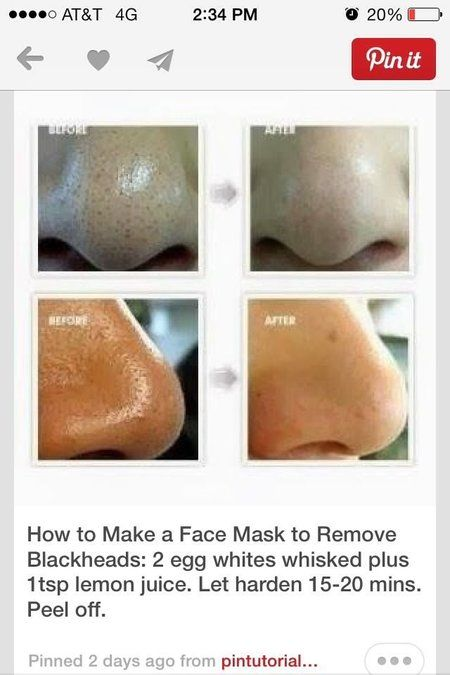 No more blackheads (on nose) #beautyhack #mask #skincare - bellashoot.com