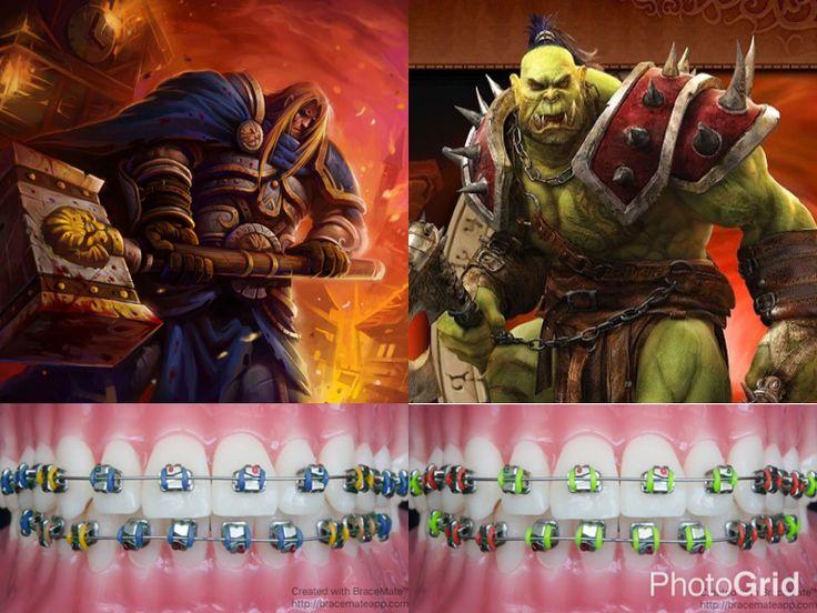 #warcraft #humans #orc #orcs #human #hoard #orthodontics #orthodontist #braces #ортодонт #ортодонтия #brackets  #ortodoncia #ortodontia #ortodontista #ortodoncista #blizzard #blizzardentertainment #colour #bracescolors #cosplay #wc #cosplay #fantasy #worldofwarcraft