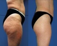 Cellulite Home Remedy Using Apple Cider Vinegar... ill need this for the future!.