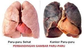 Gejala Kanker Paru Paru dan Pengobatannya ,- Paru-paru merupakan alat pernafasan yang tanpa kita sadari dapat diserang oleh salah satu penyakit ganas, yakni kanker.