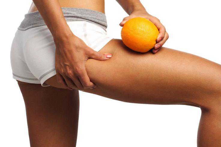 Contre la cellulite, le surpoids, et la faim constante, l'huile essentielle de Citron vous sera d'une grande aide.