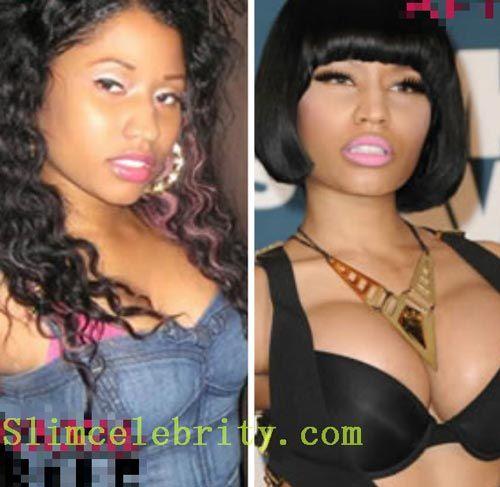 Celebrity Nicki Minaj Breast Implants Before After - http://www.surgeryceleb.com/celebrity-nicki-minaj-breast-implants-before-after/?Pinterest