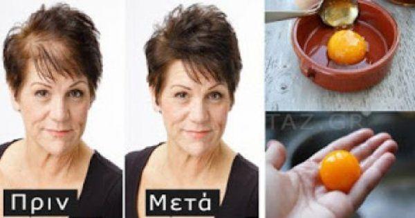 Ξέχνα την εμφύτευση! Βάλε αυτά τα 3 συστατικά και θα δεις τα μαλλιά σου να βγαίνουν «πιο πυκνά» και «πιο δυνατά» από ποτέ!