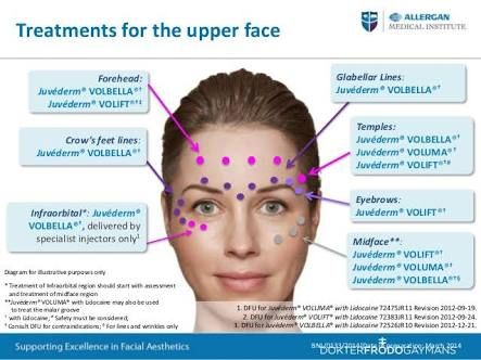 25+ best ideas about botox injection sites on pinterest ... botox eye diagram botox lip diagram