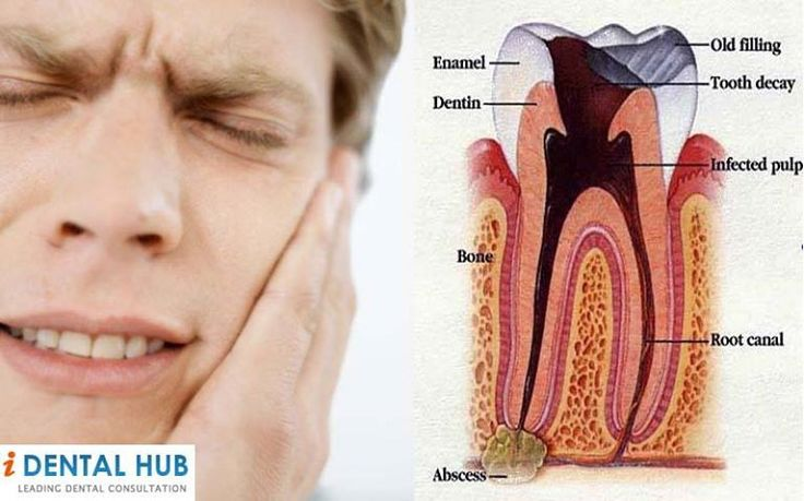 Natural Remedies For Tooth Extraction Aftercare