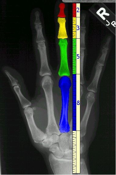 The golden ration applied to fingers
