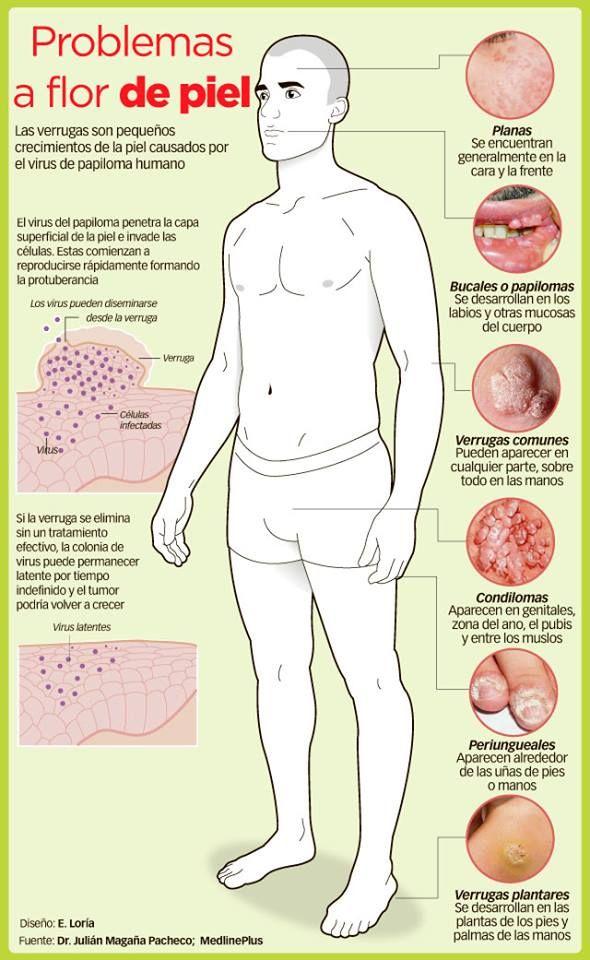 Interesante nota acerca de un padecimiento en la piel bastante común