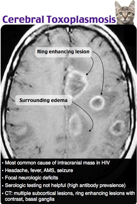 cerebral toxoplasmosis - infectious