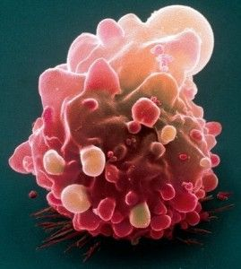 Bowel cancer embarrassment leads to gloomy outcome