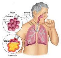 mykomplitartikel: Bahaya Kanker Paru-Paru