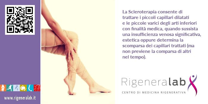 Scleroterapia per trattare piccoli capillari dilatati e piccole varici. http://www.rigeneralab.it