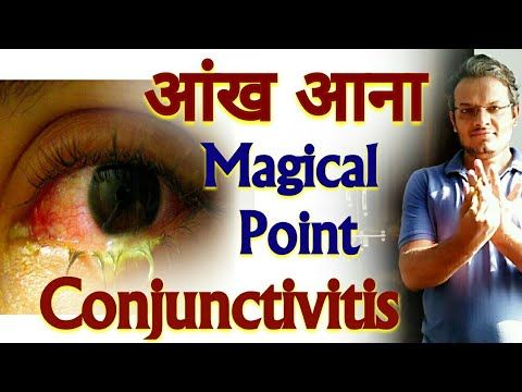 Acupressure Points For CONJUNCTIVITIS In The Eye – Acupressure For Conjunctivitis – In Hindi – YouTubeNilofar Mithani