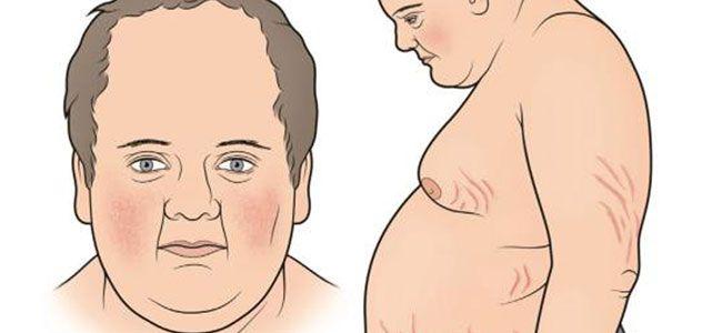 Eliminación urinaria de cortisol libre. Habitualmente se expresa en microgramos por 24 horas. Su estimación es útil en el diagnóstico del síndrome de Cushing.