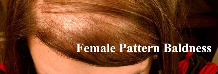 Best Homeopathic Treatment for Hair Loss, Thinning Hair, Female Pattern Baldness | Homeo Cure