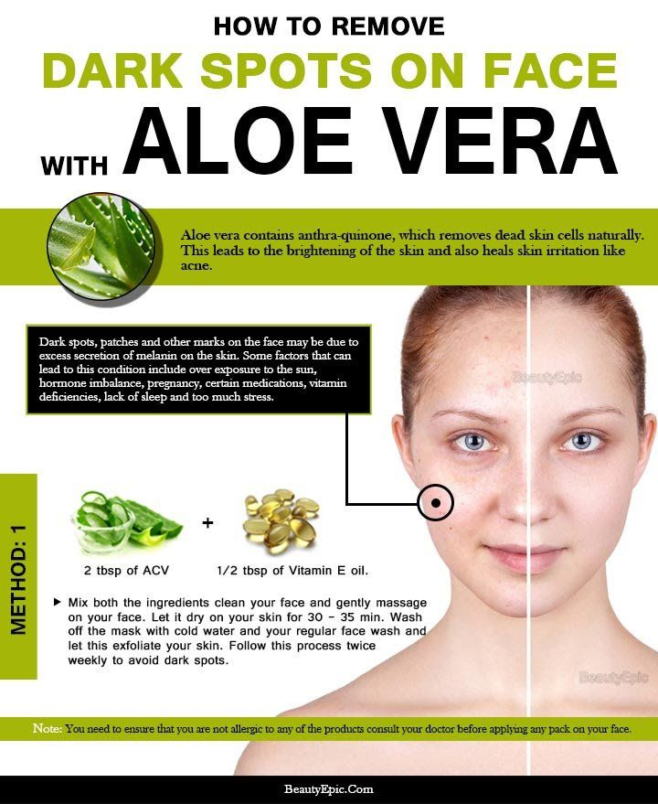 How to Use Aloe Vera to Remove Dark Spots on Face? | Incredible
