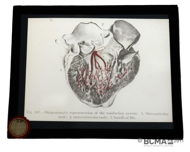 993.609.1: Lantern Slides, Pathology of the Heart. Diagrammatic representation of the conduction-system: 1, Sino-auricular node; 2, atrioventricular node; 3, bundle of His.