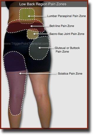 Trigger Point Pain Zones in Low Back Pain Complaints... Este gráfico ayudará a distinguir dónde se localiza el dolor cuando duele la espalda baja.