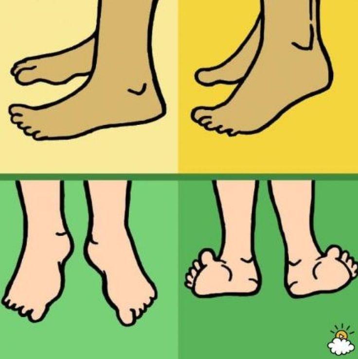 5 choses à faire pour corriger, soulager et améliorer l'apparence des oignons aux pieds
