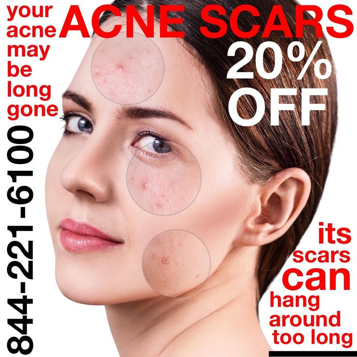 Introducing JUVA May Specials: Acne Scarring Treatment for Men & Women! Spring clean your SKIN at JUVA Skin & Laser Center this month, and get beautiful, natural-looking results for acne scars. GET 20% OFF...  EndyMed Intensif: Non-invasive, fast result Microneedling for acne scars and all skin types.  Fractional CO2: Non-invasive fractional laser resurfacing treatment to smooth your skin & build collagen.  Bellafill: The only injectable filler FDA approved to treat acne scars. Call us tod