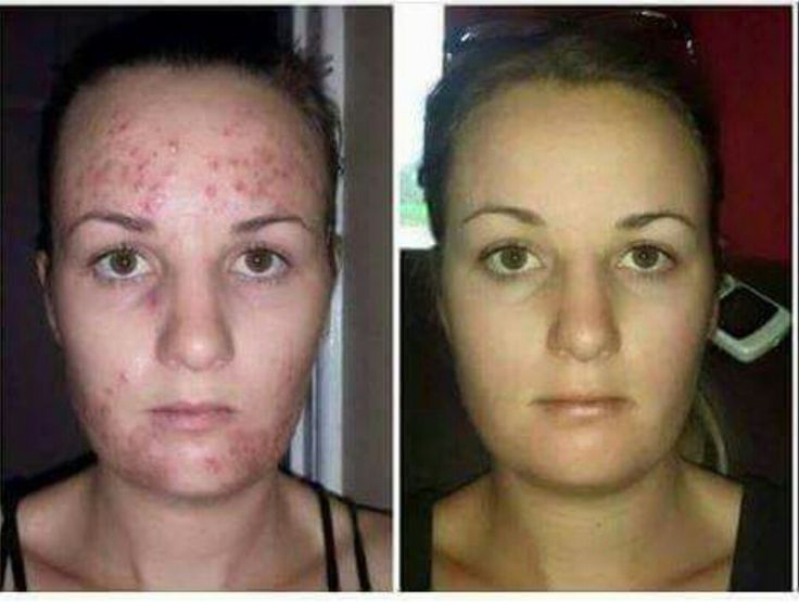 Our Instantly Ageless is AWESOME but it's not our biggest seller. Our luminesce cellular rejuvenation serum is and for good reason!! This stuff is absolutely amazing!! Luminesce serum can be used on stretch marks, cellulite, scars, wrinkles, bags, acne, acne scars, rosacea, lines and uneven pigmentation. You see results in as little as 3-5 days and the results are PERMANENT. Luminesce rejuvenates your skin getting rid of old dead skin cells and giving you new younger skin cells.