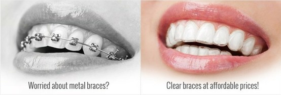 No braces, just invisible aligners for straighter teeth within 3 months