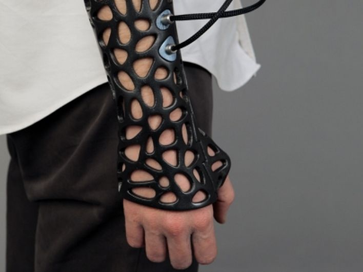 Osteoid é um exoesqueleto feito sob medida em uma impressora 3D. Braçadeira, que é resistente a água, vem equipada com um dispositivo que emite pequenos pulsos de ultra-som para ajudar na cicatrização de fraturas.