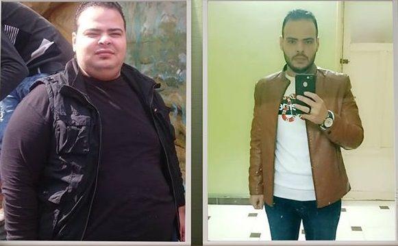 نتائج عمليات التكميم فيديو قبل وبعد الجراحة Leather Jacket Leather Jackets