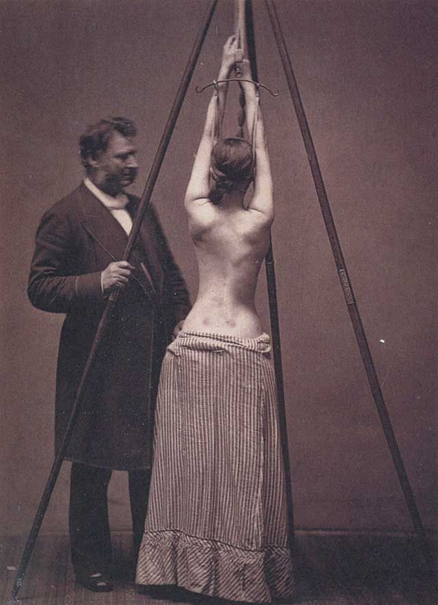 Lewis Sayre observes the change in the curvature of the spine as a patient self-suspends herself prior to being wrapped in a 'plaster of Paris' bandage.