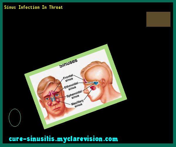 Sinus Infection In Throat 140639 - Cure Sinusitis