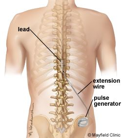 spinal cord stimulation via mayfield clinic for brain & spine
