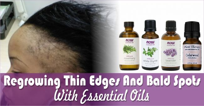 Discover the recipe that has real scientific backing when it comes to regrowing thin edges and lost hair with just essential oils.