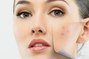 Emerging Therapies for Acne Treatments