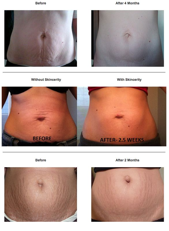 Skincerity healing stretch marks. This is just wonderful!