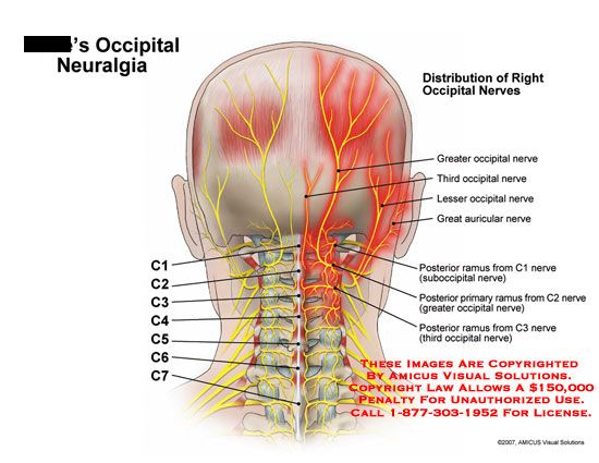 occipital nerve damage | Occipital Nerve