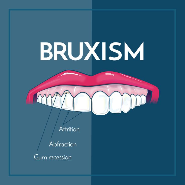 BRUXISM is excessive teeth grinding or jaw clenching, and causes tooth wear and breakage, jaw disorders, and headaches! If you notice any of these side effects, come and see us!