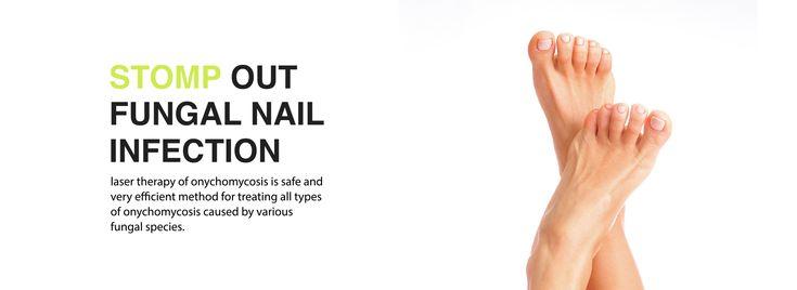 Fungal Nail Treatment | Fungal Toenail Treatment | Onycho Stop
