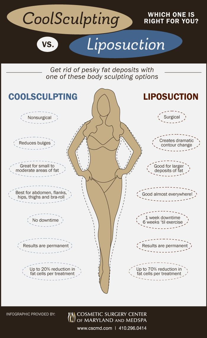 The difference between liposuction and the new technique of coolsculpting which both help to remove fat and contour the body.