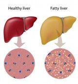 PCOS and Fatty Liver - diet recommendations for a healthy liver