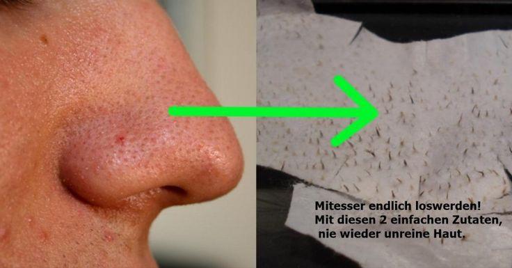 mitteser | Beauty wellness, Blackheads, Beauty health