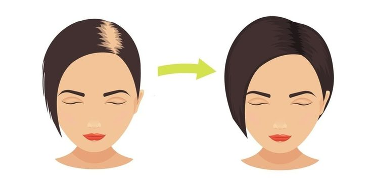 Hair loss is a problem that both men and women face every day.  It can be demoralizing and cause people to have self-esteem issues.  The major reason for hair loss is that it's hereditary.  But, other factors such as stress, hormonal changes, prescription medications, anemia, and vitamin deficienc...