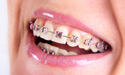 Contact our offices for any type of Braces or orthodontic need in Hialeah, Pembroke Pine, Miami Lake and surrounding areas.
