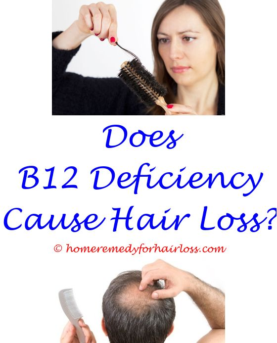 what problems in a female cause hair loss - hair loss gene maternal grandfather.peniel btob before hair loss does trinessa cause hair loss kalonji oil for hair loss 9129421296