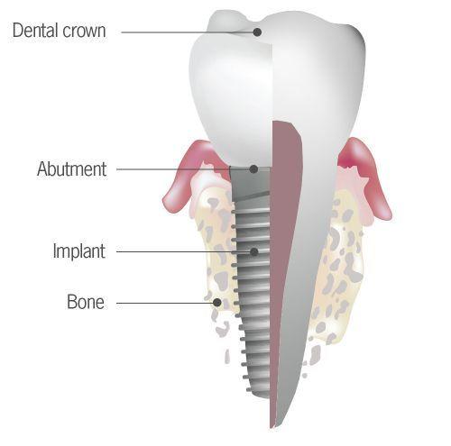 Best Implant Dentist Near Me: Affordable Dental